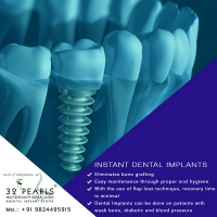 Best Dental Implants Treatment in Ahmedabad at attractive price