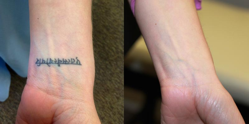 Permanent Tattoo Removal in Ludhiana -