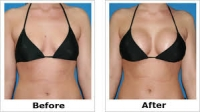 BREAST ENLARGEMENT OR ENHANCEMENT +27605775963 CREAM AND PILLS