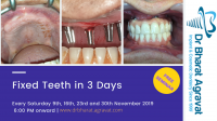 Permanent Fixed New Teeth in 3 Days by Dental Implants in Ahmedabad Gujarat India